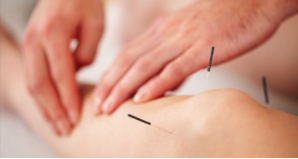acupuncture-toggle1